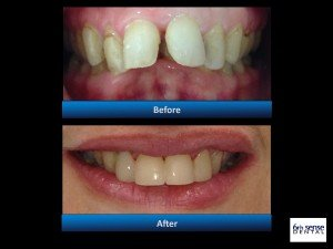 teeth straightening invisalign