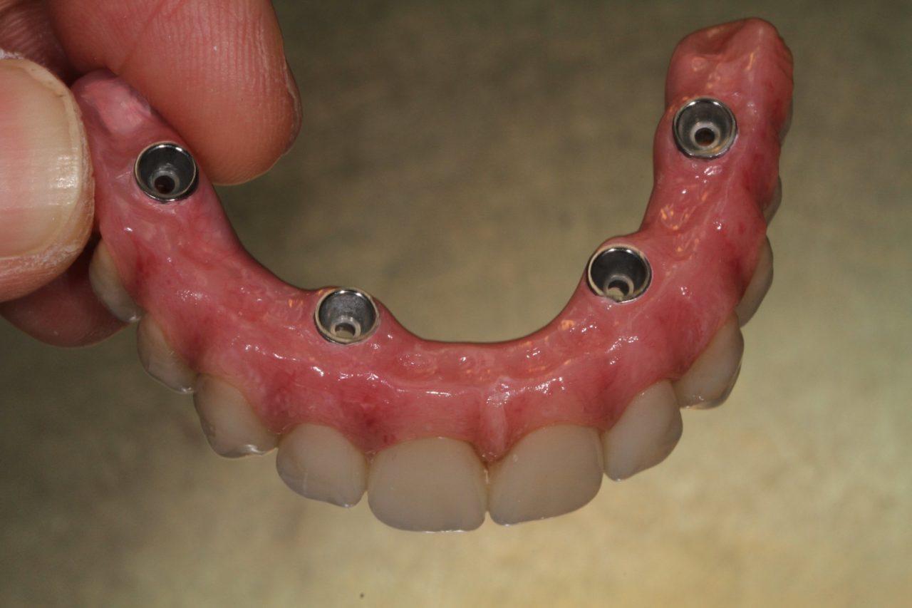dental services bridge