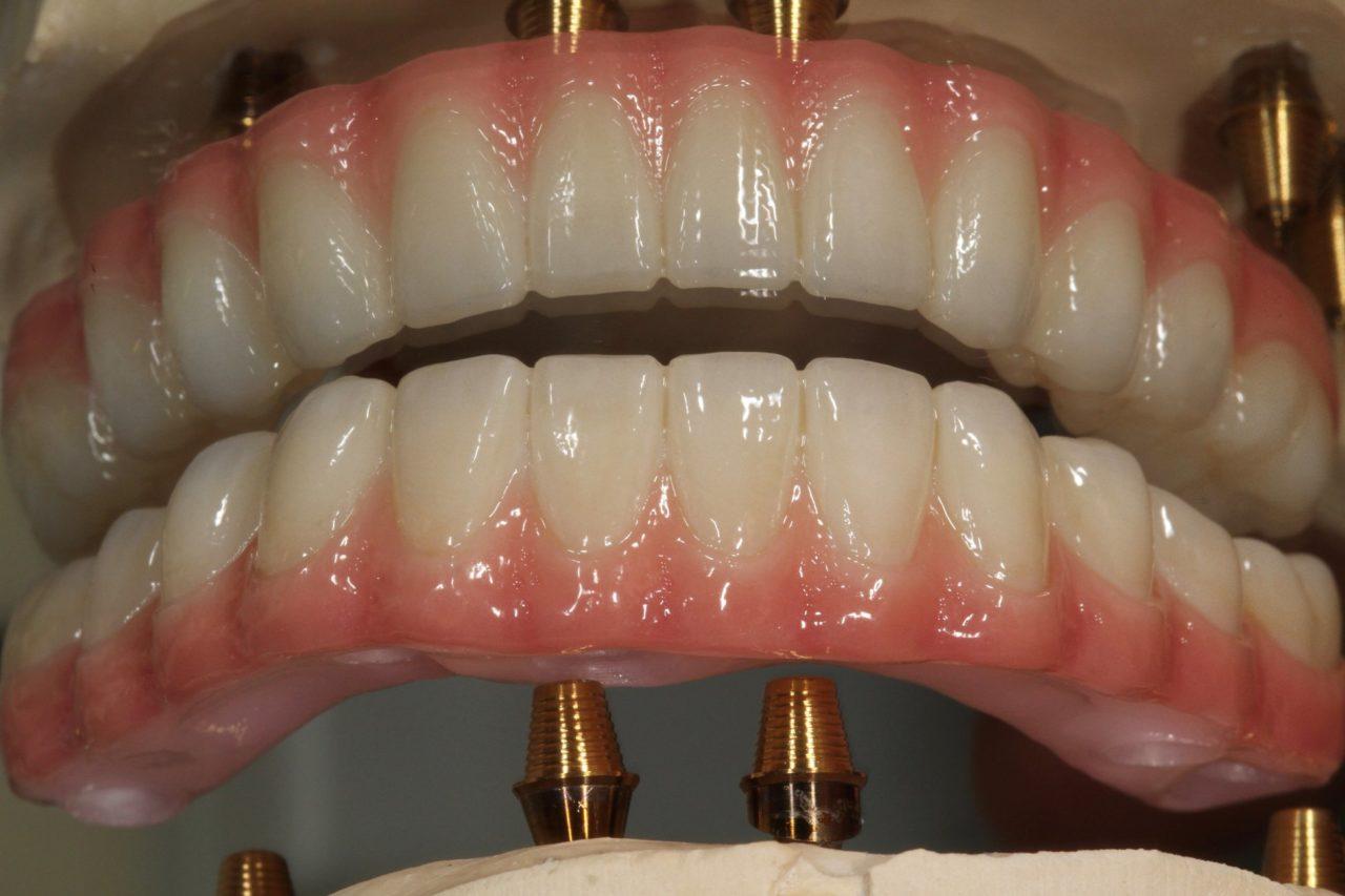 dental services dentures