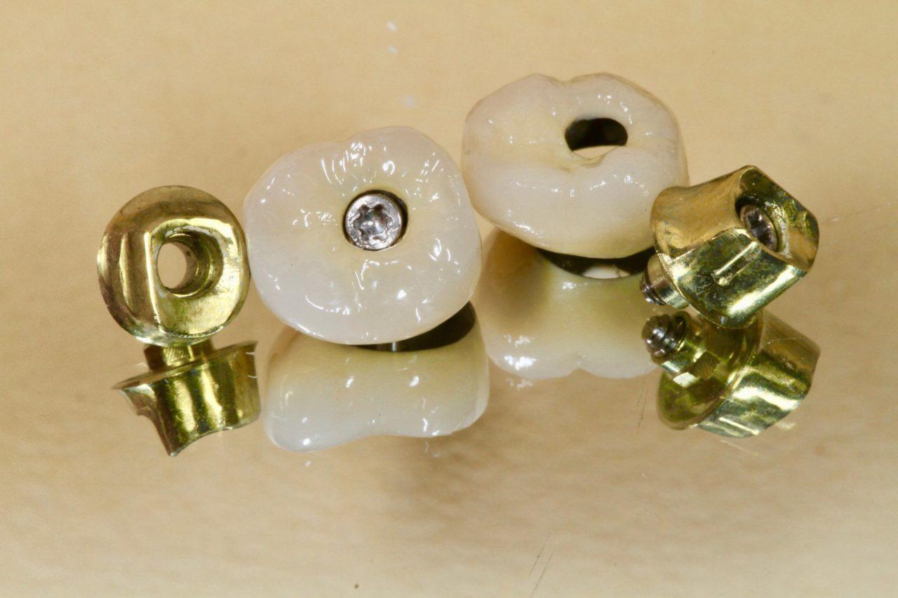 dental services fillings